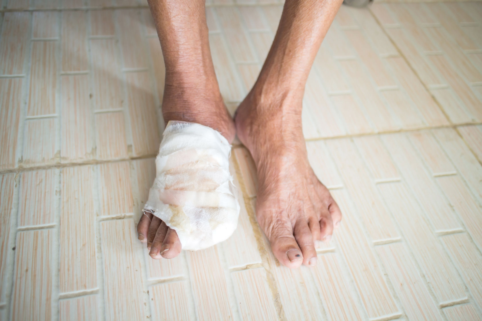 a 72 year old diabetic female exhibits a non healing wound on her left foot On 1-10-97 patient came to me with a non-healing wound (ulcer) on her left patient is a 72 year old diabetic male on the top of her foot the wound.